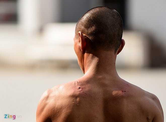 Phần lưng của võ sư Tuấn không chảy máu.