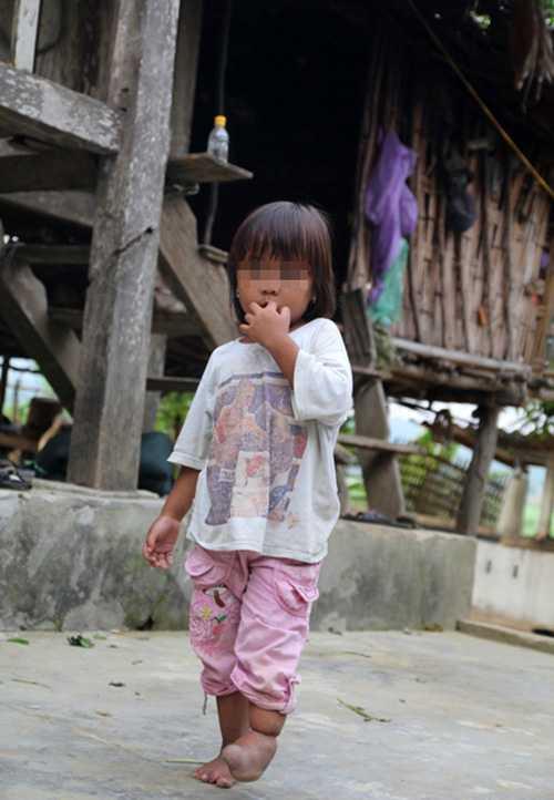 Những đứa trẻ tật nguyền, hệ quả của hôn nhân cận huyết, một vấn đề nan giải mà đến giờ chưa có lối thoát.