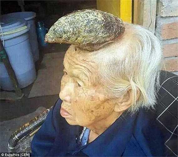 Cụ bà tên là Liang Xiuzhen (87 tuổi) sống tại ngôi làng Guiyan, thành phố Tư Dương, Tứ Xuyên (Trung Quốc). Gia đình bà cho hay, cách đây 8 năm trên đầu bà xuất hiện một nốt giống như nốt ruồi màu đen. Gia đình đã sử dụng một số phương thuốc thảo dược để chữa trị cho cụ nhưng không hiệu quả.