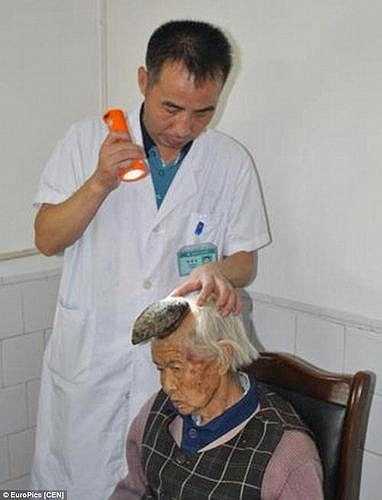 Khoảng 2 năm trước, nốt ruồi phát triển lên bằng ngón tay bé (khoảng 2cm) trông như chiếc sừng, sau đó không may, bà Liang đã vô tình làm gãy cái sừng này và một khối u mới xuất hiện, phát triển rất nhanh.