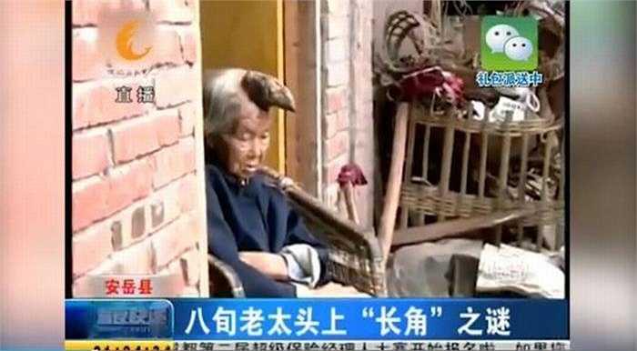 Gia đình đã đưa bà Liang đến bệnh viện để kiểm tra nhưng không điều trị được triệt để. Vì vậy, gia đình cụ quyết định để mặc chiếc sừng.