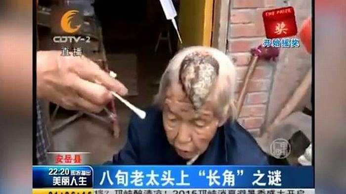 Theo các bác sỹ tại bệnh viện Tứ Xuyên, bà Liang mắc phải chứng da sừng hiếm gặp.Thông thường khối u này thường xuất hiện ở kích thước nhỏ, tuy nhiên trong một số trường hợp, nó sẽ phát triển với kích thước lớn hơn và trở thành u ác tính.