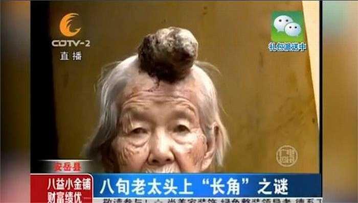 Các bác sỹ cho rằng thực hiện phẫu thuật có thể loại bỏ khối u cho bà Liang, nhưng hiện tại gia đình bà Liang đang phải cân nhắc bởi tuổi bà đã cao. Nếu phẫu thuật phải dựa vào tình trạng sức khỏe của bà.