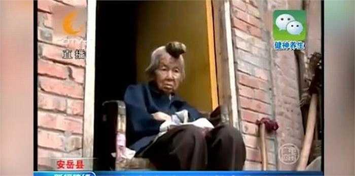 'Mẹ tôi già rồi, mà cái sừng trên đầu mẹ lại ở vị trí khá nhạy cảm. Tôi không tin tưởng vào giải pháp phẫu thuật. Nếu có điều gì tồi tệ xảy ra thì sẽ thật tồi tệ', anh Wang chia sẻ.