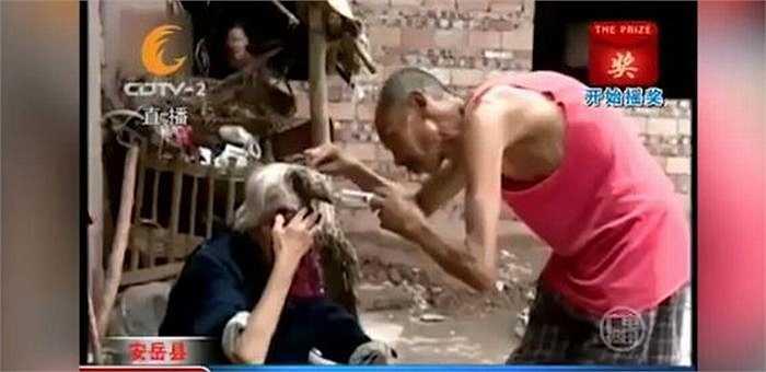Hàng ngày, anh Wang phải vệ sinh sạch sẽ chỗ rỉ máu, nơi chiếc sừng tiếp xúc với vùng trán của bà Liang.