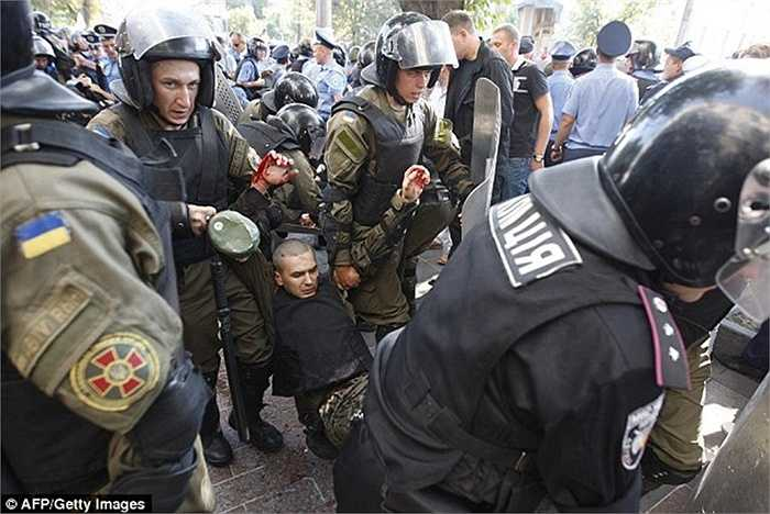Một sĩ quan cảnh sát bị thương ở tay và được các đồng đội giải nguy