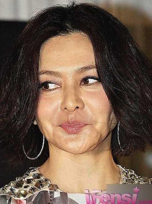 Gương mặt của Quan Chi Lâm trước đó đã có nhiều dấu hiệu của việc tiêm chất làm căng da