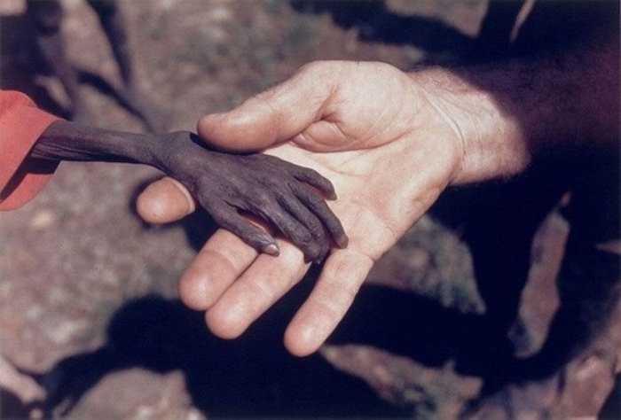Nạn đói ở châu Phi dường như là nỗi nhức nhối thực sự trên thế giới. Trong hình là một nhà truyền giáo đến với quốc gia Uganda và bắt gặp một cậu bé sắp chết đói với bàn tay chỉ còn da bọc xương.