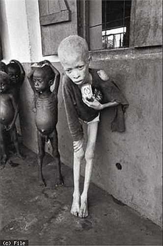 Nhiếp ảnh gia Don Mcculin từng khiến thế giới phải nhìn nhận lại về nạn đói tại Nigeria khi bức ảnh chụp một em bé thuộc bộ tộc Igbo (phần lớn dân cư bộ tộc này chết vì nạn đói) chỉ còn da bọc xương sau nhiều ngày nhịn ăn