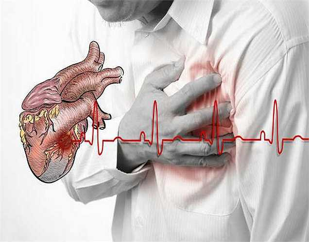 1. Biến chứng bệnh tim: Nhồi máu cơ tim và đột quỵ là một trong những biến chứng nguy hiểm nhất của bệnh tiểu đường. Đường trong máu tăng cao làm lắng đọng mỡ gây bít tắc và dày thành tim. Mạch máu hẹp không thể bơm đủ máu đến tim nên nguy cơ mắc bệnh tim mạch tăng.