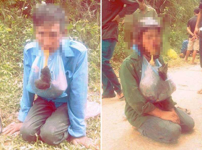 Hai người đàn ông bị người dân bắt, đánh đập, bắt ngậm gà chết vì trộm gà