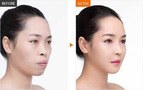 Phẫu thuật thẩm mĩ đã mang lại cho Vũ Thanh Quỳnh một vẻ đẹp hoàn hảo để cô tự tin hơn vào cuộc sống. (Ảnh Internet)