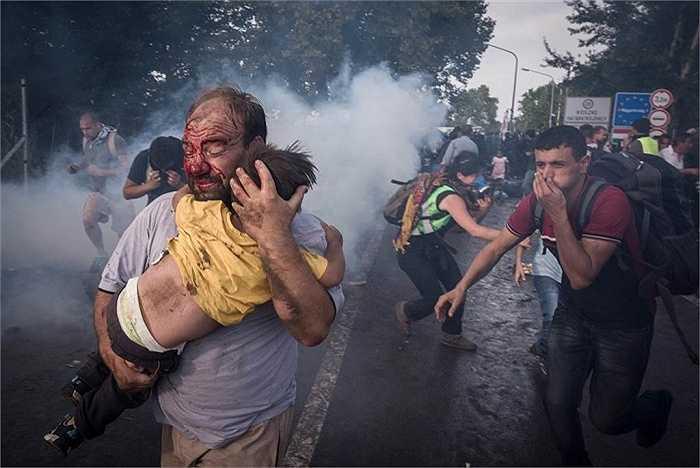 Người đàn ông bị thương, mặt bê bết máu, bế con mình chạy khỏi đám đông đang đụng độ với cảnh sát Hungary ở vùng biên giới Horgos, Serbia. Xung đột đã xảy ra khi chính phủ Hungary đóng cửa biên giới ngăn dòng người di cư vào nước này hôm 15/9