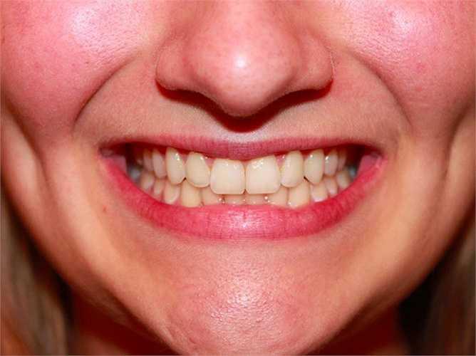 Rụng răng là giấc mơ phổ biến mà nhiều người từng gặp. Răng là biểu tượng của quyền lực và sự tự tin. Do đó, việc nằm mơ bị rụng răng cho thấy bạn gặp phải một tình huống khó xử khiến bản thân cảm thấy mất tự tin. Lời khuyên dành cho bạn đó là hãy bình tĩnh, suy nghĩ thấu đáo vấn đề và cố gắng xử lý, vượt qua thách thức, trở ngại.