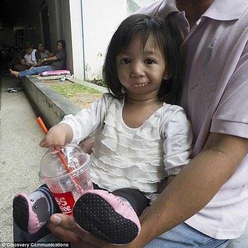 Các bác sỹ cho biết Amethyst còn quá nhỏ nên không thể chịu đựng được những ca phẫu thuật phức tạp để tái tạo miệng cho cô bé.