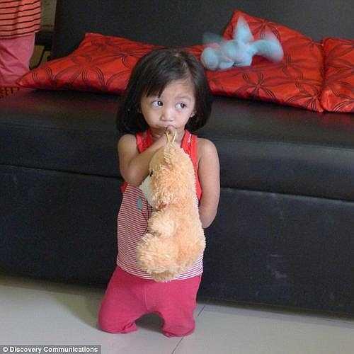 Đến giờ, Amethyst đã 3 tuổi nhưng cô bé vẫn không thể ăn thức ăn, Amethyst vẫn phải duy trì sự sống bằng cách truyền chất dinh dưỡng vào cơ thể hàng ngày mà không qua đường miệng. Dù đau đớn nhưng cô bé đã mỉm được cười và học đi như bao đứa trẻ bình thường khác.