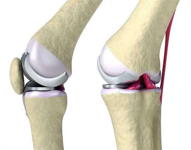 Tốt cho xương: hướng dương là cũng chứa nguồn magie đó là cần thiết cho xương chắc khỏe, ngoài canxi.