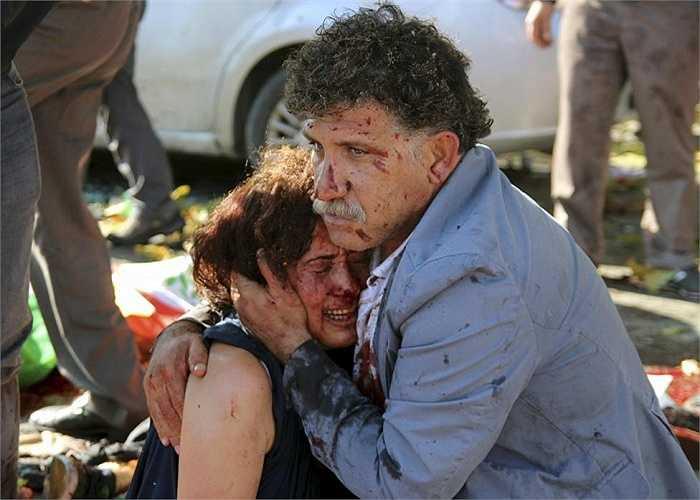 Người đàn ông ôm một phụ nữ bị thương sau vụ đánh bom kép tại Ankara, Thổ Nhĩ Kỳ ngày 10/10
