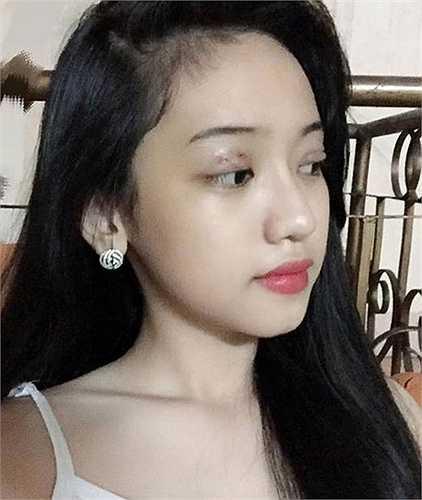 Việt hot girl Thúy Vi công khai chuyện phẫu thuật thẩm mỹ trong khi còn ngồi trên ghế nhà trường khiến nhiều người bất ngờ.