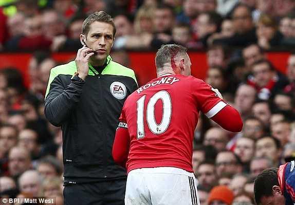 Rooney chảy máu đầu