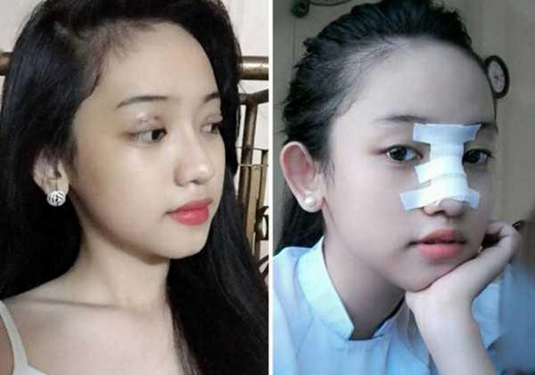 Có ai nghĩ được cô gái 17 tuổi dám công khai những hình ảnh phẫu thuật thẩm mỹ như thế này?