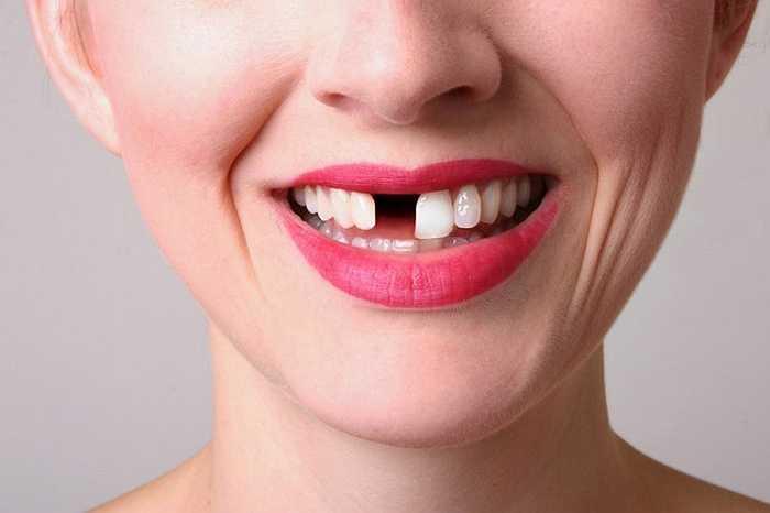 Thói quen này có thể làn nứt mẻ răng ngoài ra còn làm tổn thương vùng bên trong miệng, làm lệch hàm dẫn đến đau hàm mãn tính.