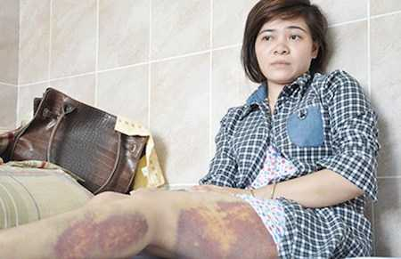 Chị Thu bị đánh phải nhập viện.