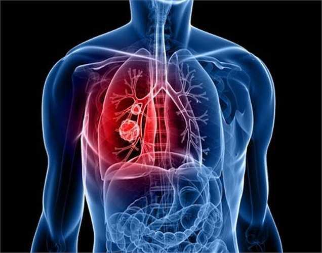 Ung thư phổi: Những người không hút thuốc cũng có thể bị ung thư phổi. Đây là loại ung thư ảnh hưởng đến những người phụ nữ hút  thuốc lá thụ động. Thống kê cho thấy 8 trong số 10 phụ nữ dễ bị ung thư phổi nếu có người thân bên cạnh hút thuốc.
