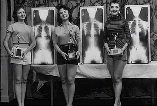 Đây là cuộc thi Hoa hậu Tư thế chuẩn. Ban giám khảo sẽ đánh giá thí sinh dựa trên hình chụp X-quang để có cái nhìn chân thực nhất về cơ thể của các người đẹp