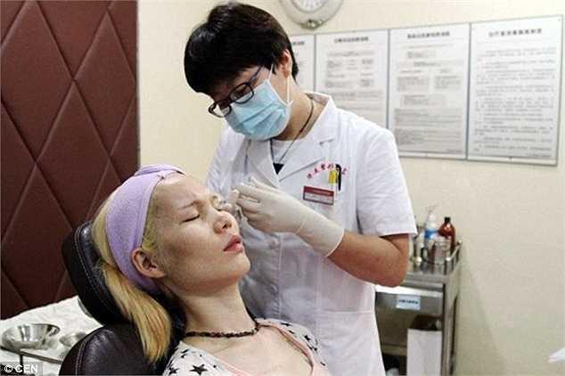 Tháng 6/2015, Li xuất hiện trong chương trình truyền hình U Beauty, một chương trình cho phép người tham gia được phẫu thuật thẩm mỹ miễn phí để thay đổi ngoại hình.