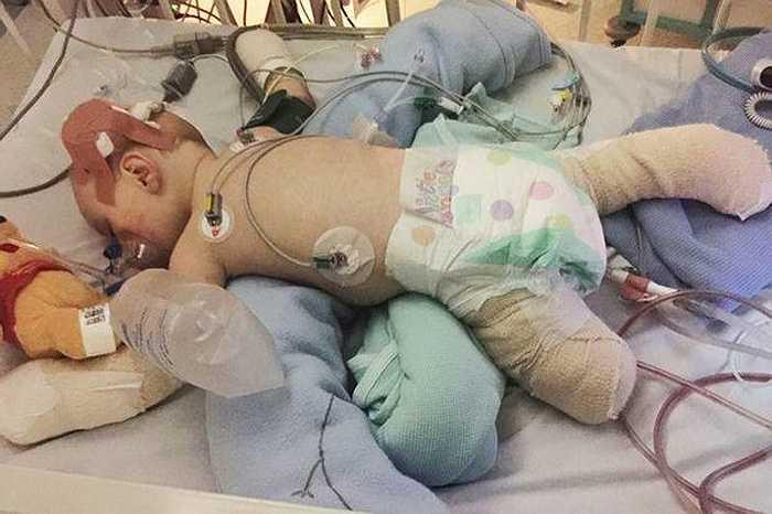 May mắn sống sót nhưng do di chứng của căn bệnh nên cậu bé Taylor đã phải cắt bỏ một phần chân trái, các ngón chân phải và toàn bộ 10 ngón tay.