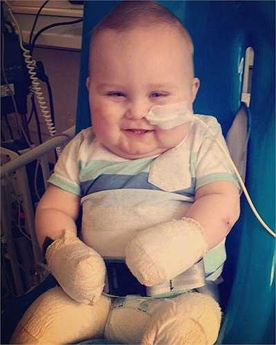 Luôn phải chịu đau đớn về thể chất thế nhưng suốt thời gian nằm điều trị tại bệnh viện, Taylor vẫn luôn vui vẻ, cười đùa khúc khích. Tinh thần vui tươi và lạc quan của cậu bé đã khiến toàn thể y bác sĩ vô cùng ngạc nhiên và xúc động.