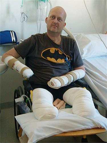 Anh John Rushton, 42 tuổi, một người quản lý bưu điện ở Anh bị viêm phổi sau khi mắc bệnh cảm lạnh. Nhưng tình trạng của anh đã tồi tệ hơn khi nằm trong bệnh viện. Bác sĩ đã chuẩn đoán rằng anh bị mắc chứng nhiễm trùng máu và buộc phải cắt bỏ bàn tay phải, các ngón tay trên bàn tay trái và cả hai chân của anh.
