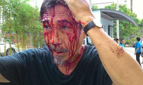 Nạn nhân bị bảo vệ đánh vỡ đầu là ông Phan Thái Tú