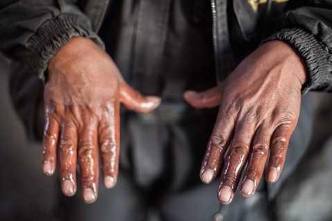 Đào vàng cần phải có thủy ngân và hầu hết những người công nhân ở đây đều bị nhiễm độc từ chất hóa học này