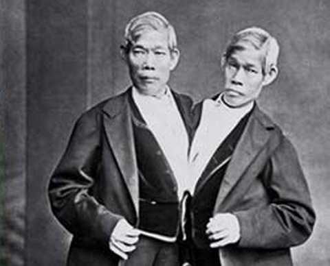 Cặp song sinh Chang và Eng Bunker