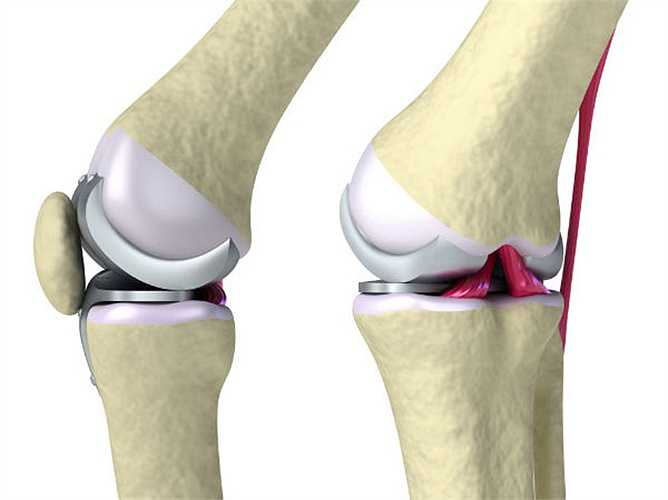 Cải thiện mật độ xương:  hành lá chứa nhiều vitamin C và K đó là rất quan trọng cho các hoạt động bình thường của xương. Nó tổng hợp collagen làm cho xương chắc khỏe. Vitamin K, giúp cải thiện mật độ xương
