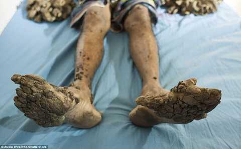 Nhiều người gọi Abul là người cây vì tay, chân của anh giống như đang mọc rễ