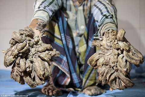 Bàn tay như mọc rễ của Abul