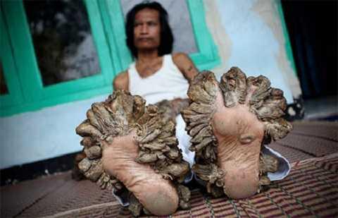 Người cây nổi tiếng ở Indonesia