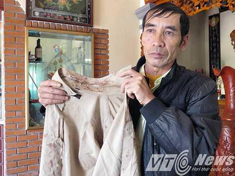 Ông Nguyễn Thành Thúy - Trưởng thôn Tuần Tiến, xã Kiến Thiết - Người bị đánh phải nhập viện khi đi giải tán đám đánh bạc