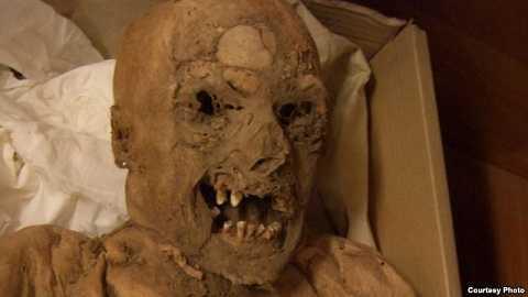 Những xác ướp từ thế kỉ 18 tiết lộ đầu mối về căn bệnh ung thư