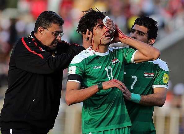 Trận đấu Iraq vs Việt Nam hôm qua diễn ra vô cùng quyết liệt. Trong ảnh, Alaa Abdulzehra chảy máu đầu sau pha va chạm với Quế Ngọc Hải.