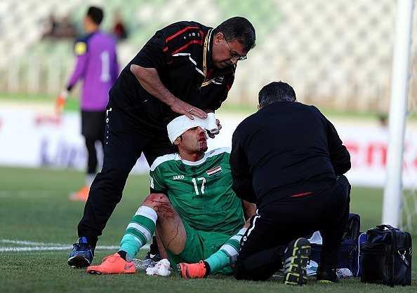 Cầu thủ này phải rời sân sớm. Anh bị choáng và sau đó không thể thi đấu được nữa.