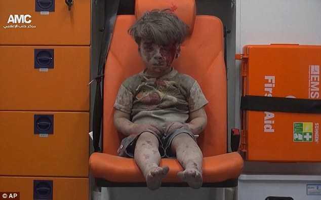 cau be Syria bi thuong khien ca the gioi bang hoang