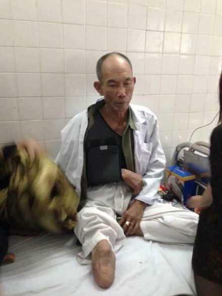 Công an, luật sư vào cuộc vụ cựu binh cụt chân bị đánh nhập viện ảnh 1
