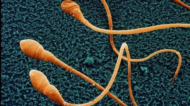 khkt-sperm-science-photo-library-1501036408