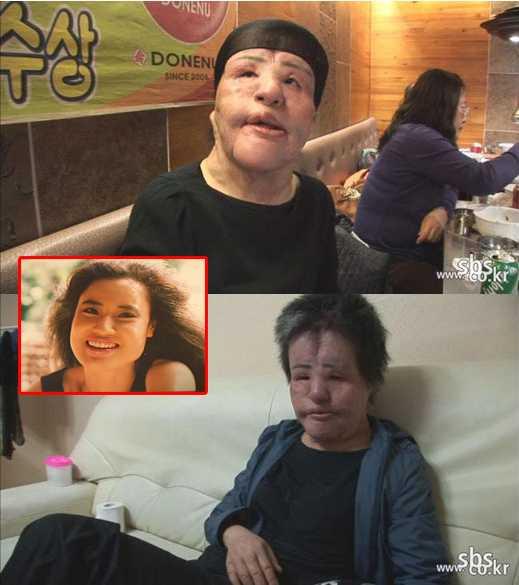Một tai nạn phẫu thuật thẩm mỹ đáng sợ được nhắc đến nhiềunhất là nghệ sĩ Han Mi Ok. Nghiện bơm botox, cô đã hủy hoại hoàn toàn khuôn mặt mình, khiến nó trở nên biến dạng.