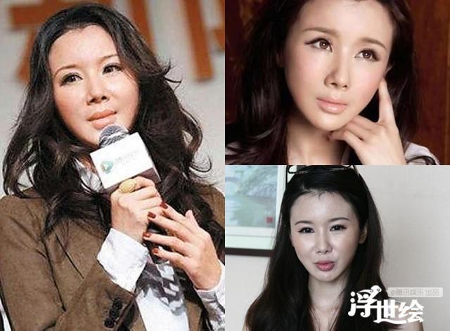 Giai nhan Trung Quoc mat bien dang khi tiem botox qua da hinh anh 4
