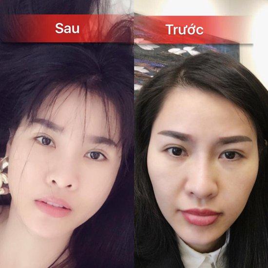 que-van-bat-ngo-cong-khai-qua-trinh-lam-lai-toan-bo-guong-mat-2